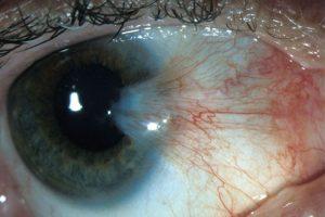 Мікрохірургія ока Луцьк. Лікування птеригіума