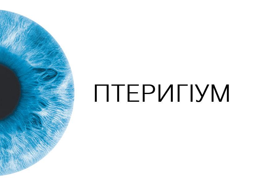 Птеригіум м. Луцьк