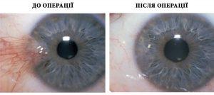 хірургія ока Луцьк