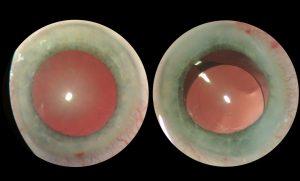 Незріла катаракта