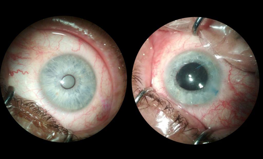 Лікування катаракти Луцьк