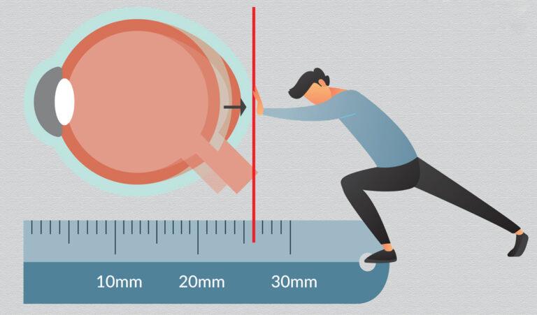 Ріст ока при міопії