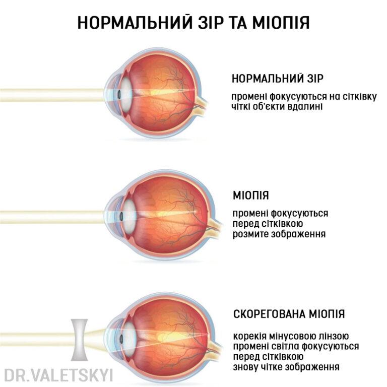 Причини міопії